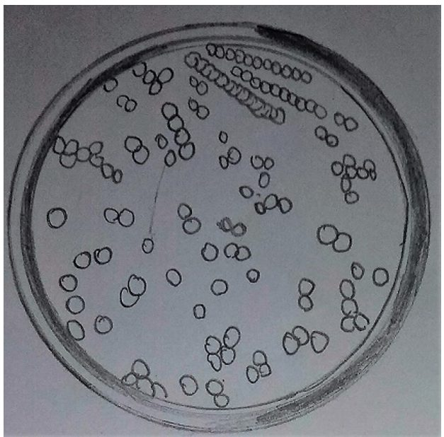 Colonies of bacteria on a petri dish diagram